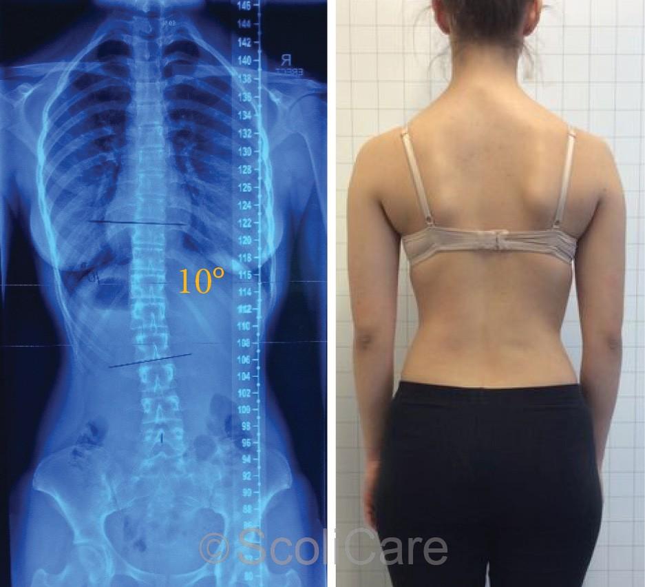 Scoliosis Imprvement