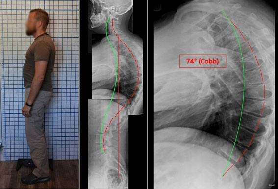Hyper-kyphosis and significant posterior sagittal imbalance