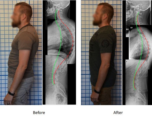 hyper-kyphosis before and after